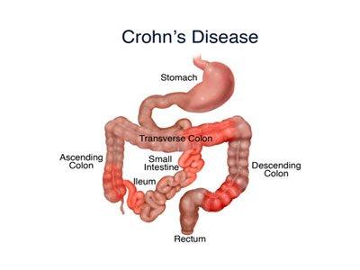 Tại sao bệnh Crohn lại phổ biến ở người Do Thái?
