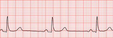 Nhịp tim chậm