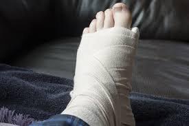 Gãy xương bàn chân