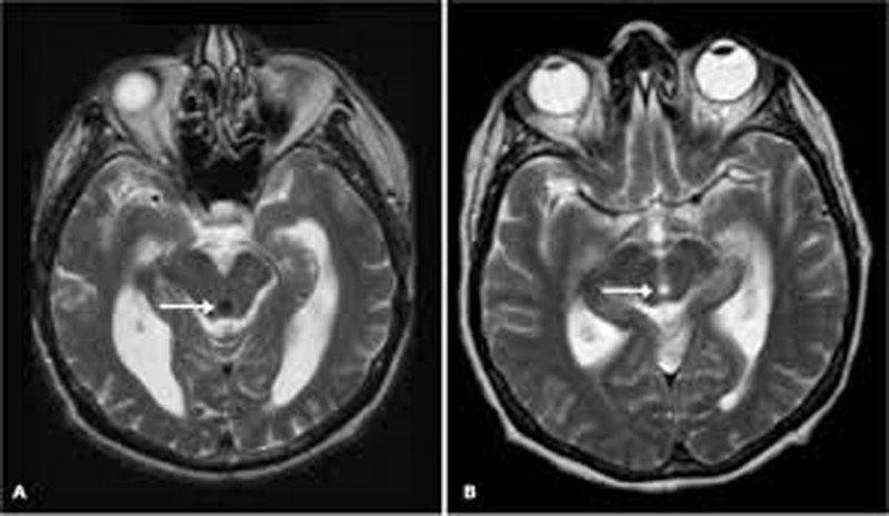 Bé 14 ngày tuổi có nang não thất bên phải có sao không?