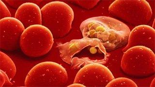 tăng bạch cầu đơn nhân nhiễm khuẩn