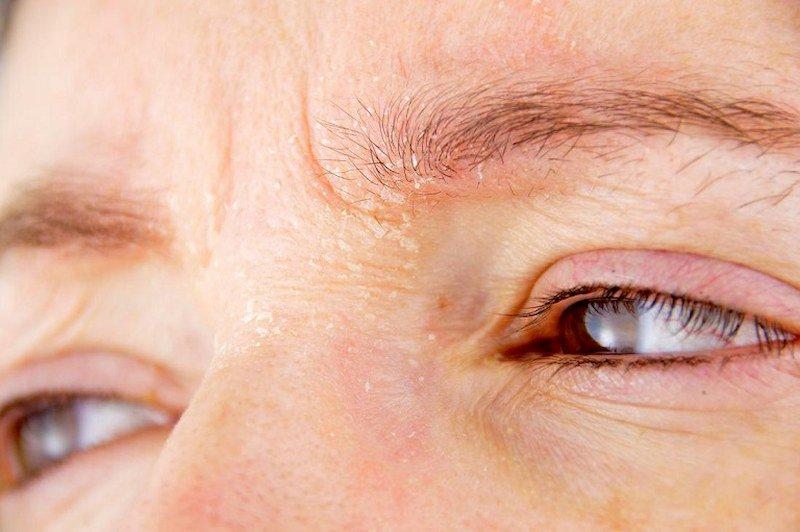 vòng đỏ quanh mắt
