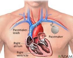Đang đặt máy tạo nhịp tim có nên hiến máu không?