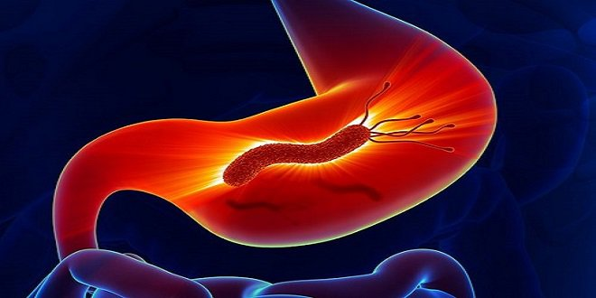 Vi khuẩn helicobacter pylor