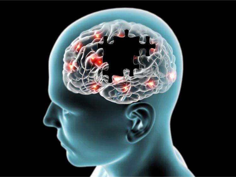 Bệnh Alzheimer 1