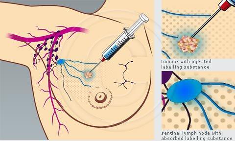 Sinh thiết trong ung thư vú