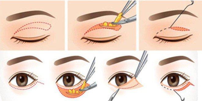 Phẫu thuật điều trị co giật mí mắt sau bóc mỡ mắt có được không?
