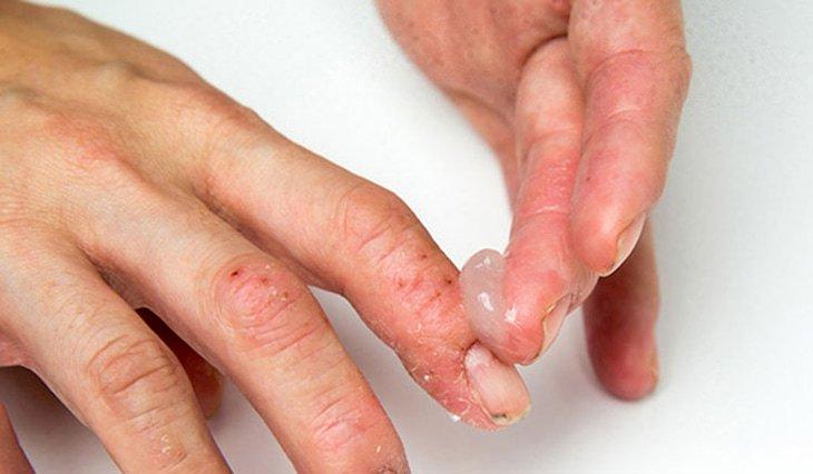 Nứt tay có bôi thuốc sát khuẩn Betadine và thuốc tra mỡ mắt được không?