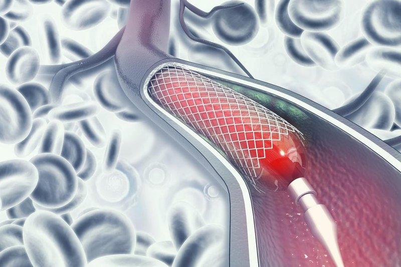 stent mạch vành