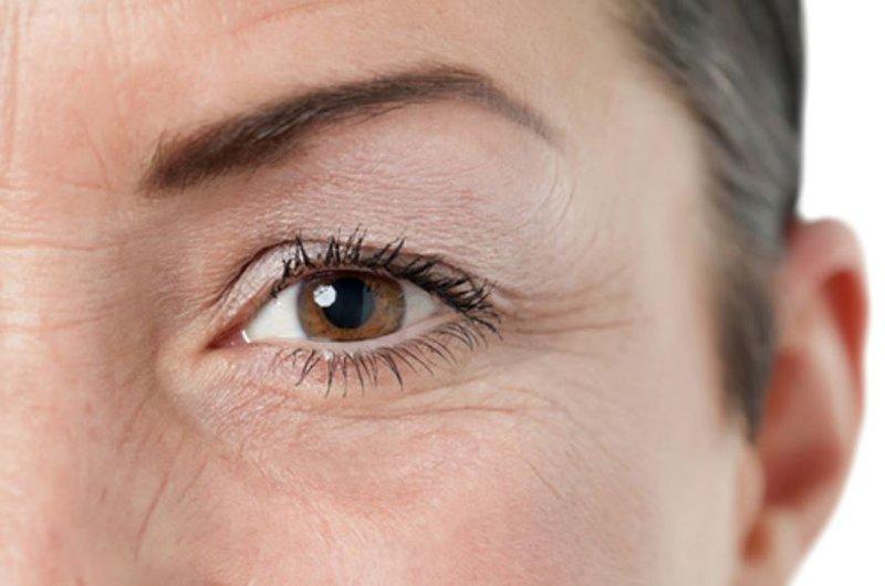 Nếp nhăn quanh mắt