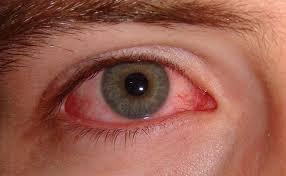 Mắt đỏ, đau tức nhẹ kèm ghèn
