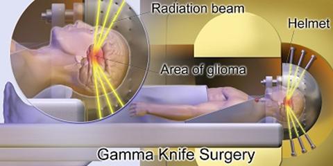 Phẫu thuật dị dạng mạch máu não bằng dao Gamma có hiệu quả không?
