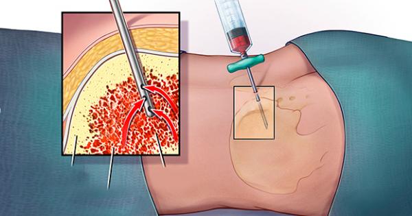 Suy tủy xương xét nghiệm thấy xơ ít có nguy hiểm không?