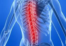 Xương sống đau nhức sau điều trị lao cột sống được 1 năm có phải tái phát bệnh không?