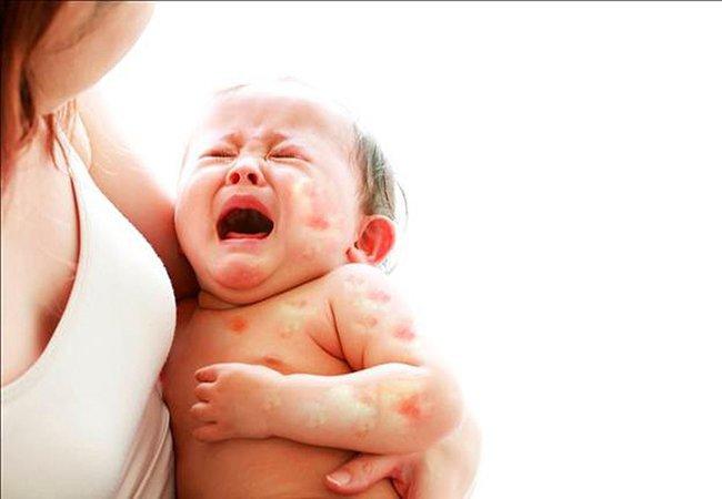 Bé gần 4 tháng tuổi bị dị ứng đạm sữa bò đi ngoài ra chỉ đỏ cần làm gì?