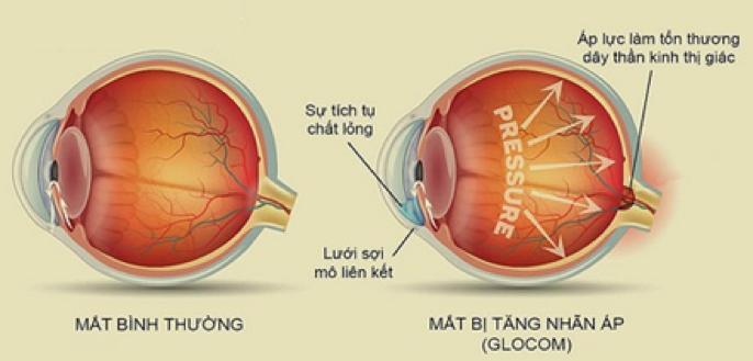 Chấn thương thị thần kinh mắt làm mắt mờ không thấy rõ chữa trị được không?
