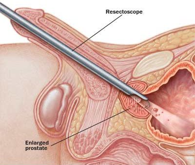 Tiểu máu sau cắt đốt u bàng quang được 3 tuần có nguy hiểm không?