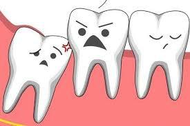 Điều trị sau nhổ răng khôn