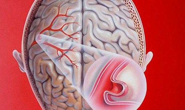 Phình mạch máu não