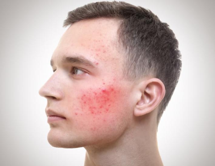 Nhiễm trùng nấm da mặt