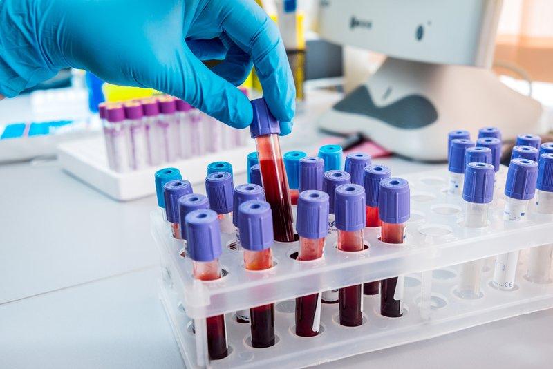 Xét nghiệm virus viêm gan