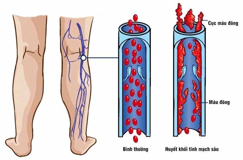 Viêm tĩnh mạch huyết khối