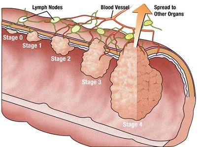 Các giai đoạn của ung thư đại tràng được đánh giá như thế nào?