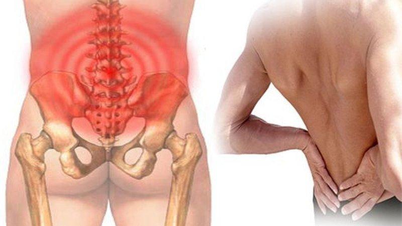 Va chạm vật cứng gây đau lưng là dấu hiệu của bệnh gì?