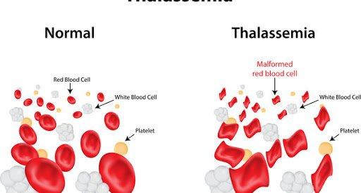 Beta thalassemia vẩy