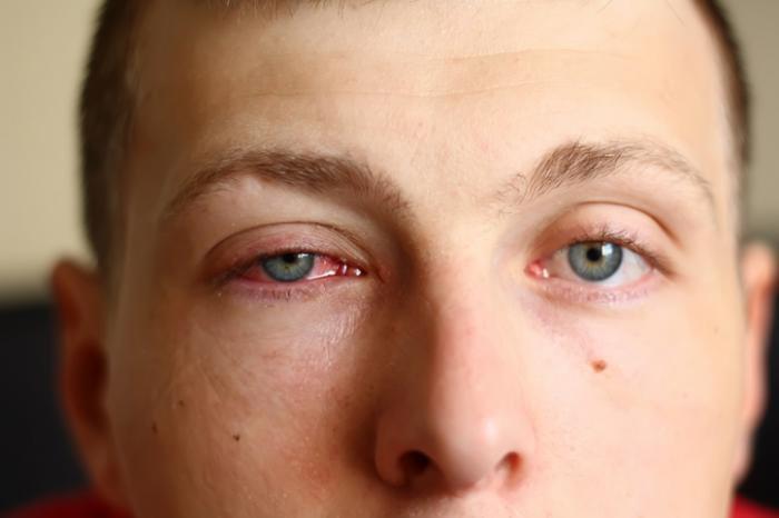 Bệnh lý nhiễm khuẩn mắt