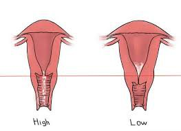 Cổ tử cung ngắn