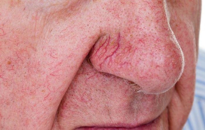 Giãn mạch máu mũi 1