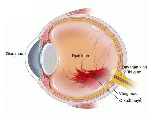 xuất huyết dịch kính 1