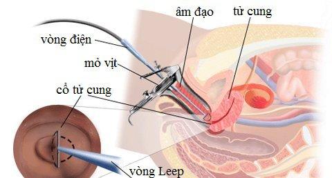 Có thể mang thai sau phẫu thuật cắt viêm lộ tuyến cổ tử cung không?