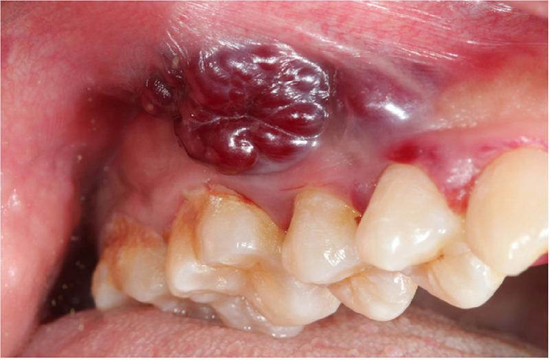 Chăm sóc răng miệng cho bệnh nhân ung thư