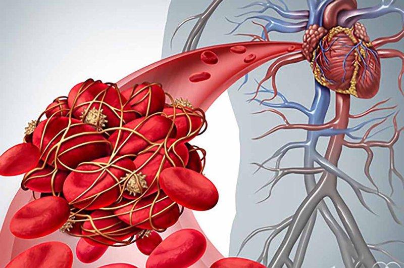 Huyết khối tĩnh mạch thận
