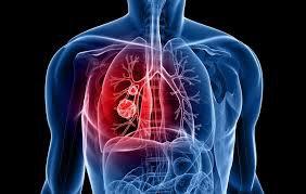 Mổ ung thư đường ruột phát hiện trong phổi có 1 đốm đen nhỏ có nguy hiểm không?