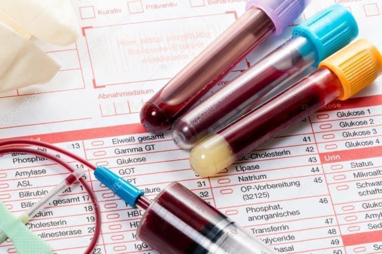 Chỉ số sinh hóa trong các xét nghiệm chẩn đoán viêm loét đại tràng chảy máu