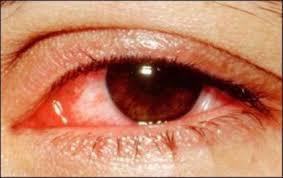 Thỉnh thoảng ngứa mi mắt sau điều trị viêm bờ mi phải làm thế nào?