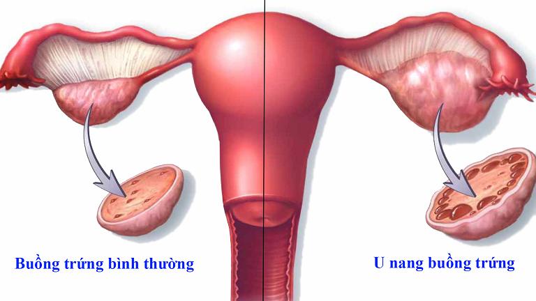 Mổ bóc tách u nang buồng trứng