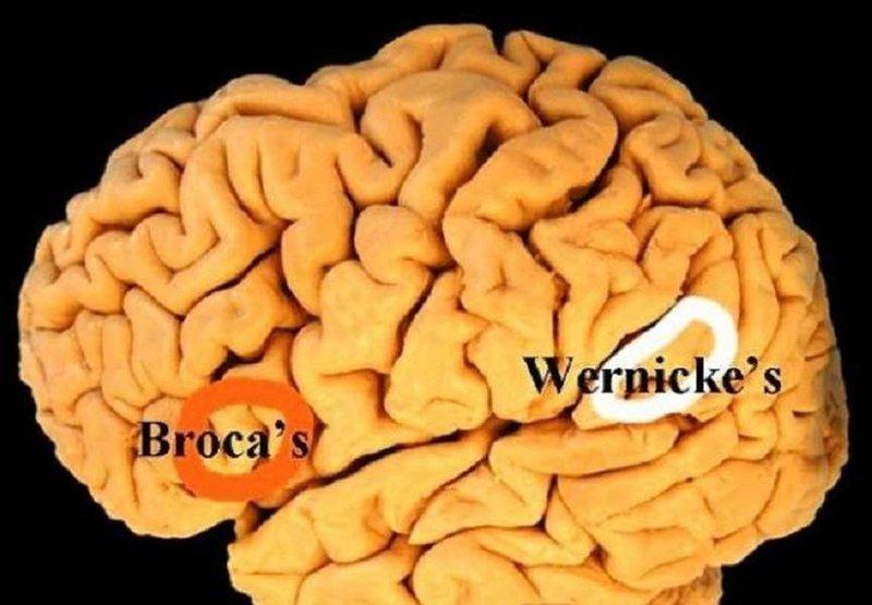 Tìm hiểu về bệnh não Wernicke
