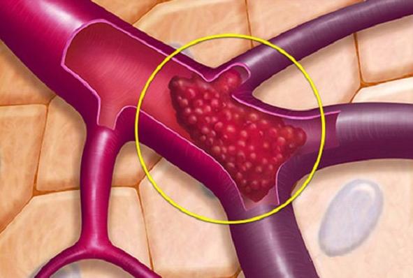 Siêu âm mạch máu phát hiện cục máu đông có sao không?