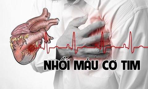 Xét nghiệm HS Troponin T/ I được chỉ định thực hiện để chẩn đoán tổn thương cơ tim, điển hình là nhồi máu cơ tim