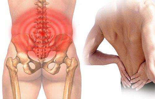 Đau lưng vùng hông do thừa xương ở đốt sống là dấu hiệu bệnh gì?