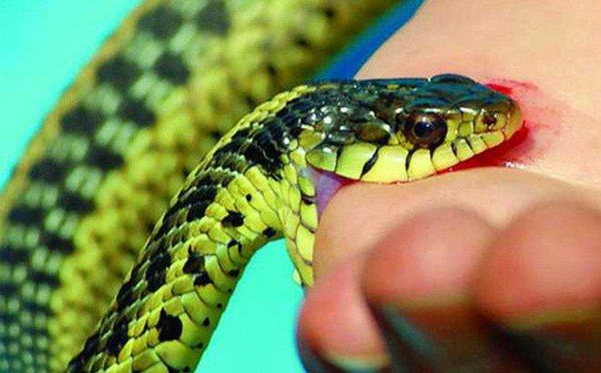 Nổi bỏng đỏ ở tay kèm khàn tiếng sau 5 ngày bị rắn lục cắn có sao không?