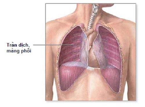 Lao phổi kèm tràn dịch màng phổi sử dụng thuốc lá điện tử được không?
