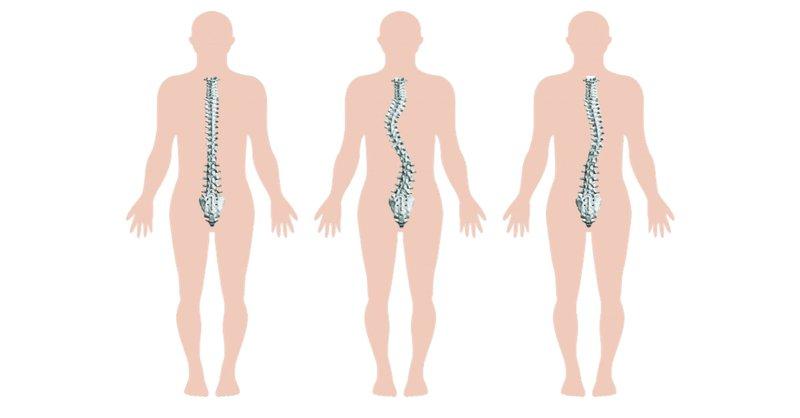 Bệnh nhân bị cong vẹo cột sống có trượt patin được không?
