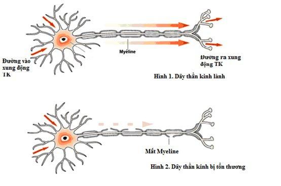 Trẻ 4 tuổi yếu 1 bên chân trái sau điều trị viêm đa rễ thần kinh có thể chữa được không?