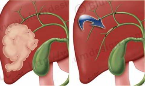 Làm thế nào để hết dịch ổ bụng do ung thư đường mật di căn gan?