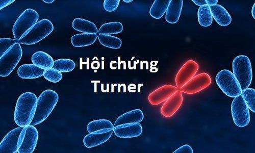 Mắc hội chứng Turner thể khảm uống thuốc hormon được không?